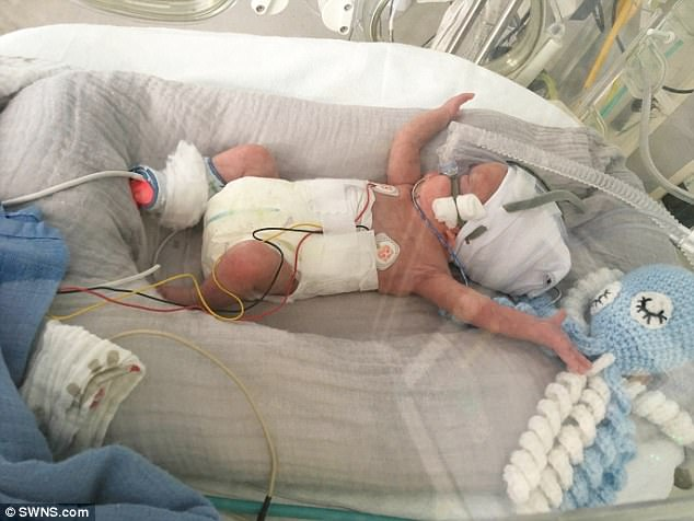 WOMAN GOES INTO LABOR AT JUST 22 WEEKS-DOCTORS ARE DOING ALL THEY CAN TO KEEP HIM ALIVE